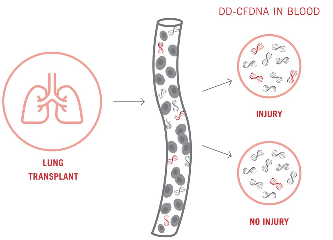 Following a lung transplant, a higher percentage of dd-cfDNA in blood in indicates injury, whereas a low percentage indicates no injury.
